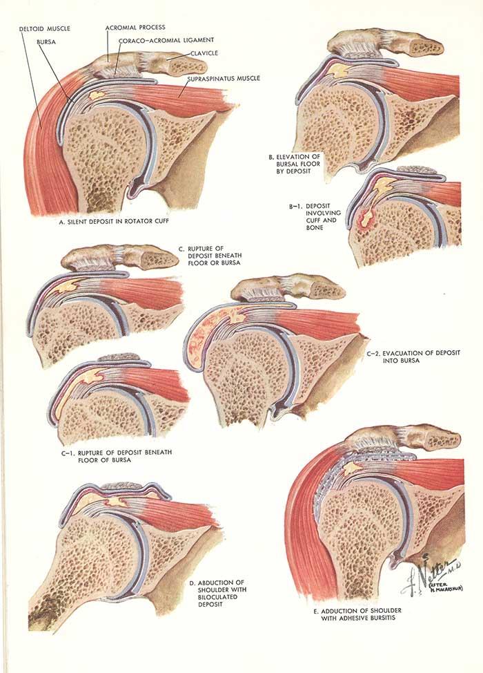 Paul Manley treatment for back pain, neck pain, Musicians RSI ...